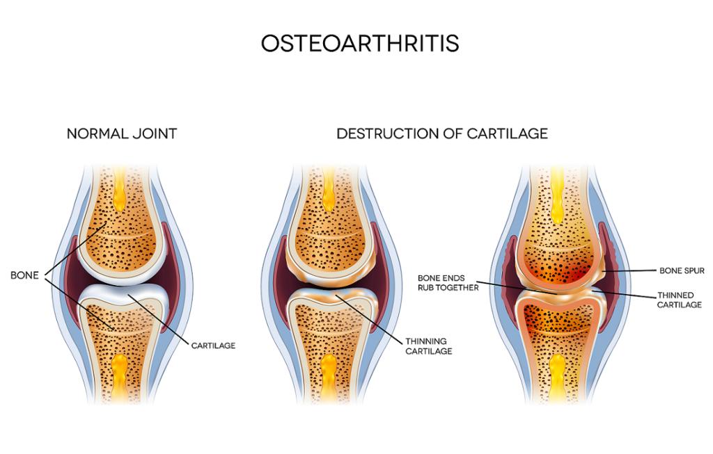 Osteoarthritis two