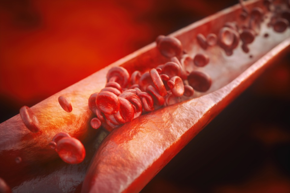 What is Atherosclerosis and what causes it?