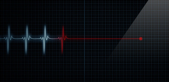 The time between heartbeats varies from beat to beat, and a deeper analysis of HRV gives a lot of valuable information about the physiological state of the body.  jeremyculpdesign / fotolia