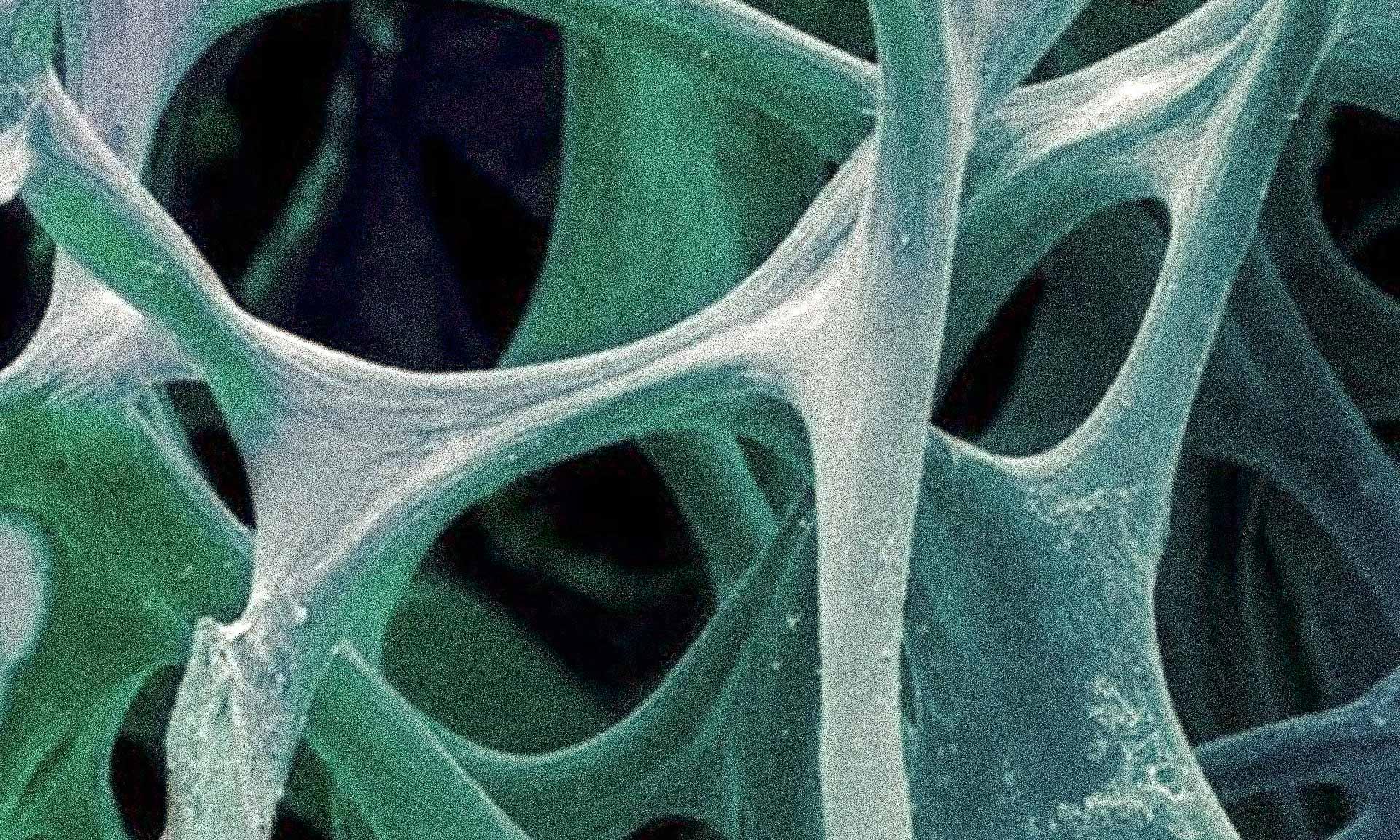 Osteoporosis - a 20th century disease
