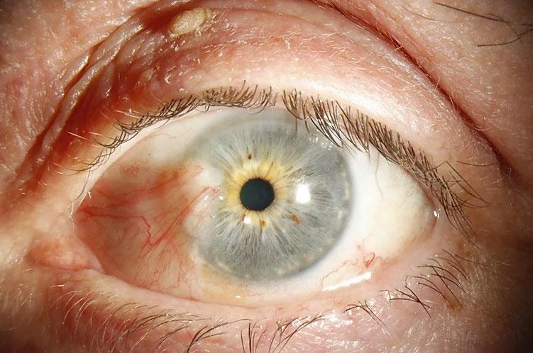 before eye surgery in Edinburgh