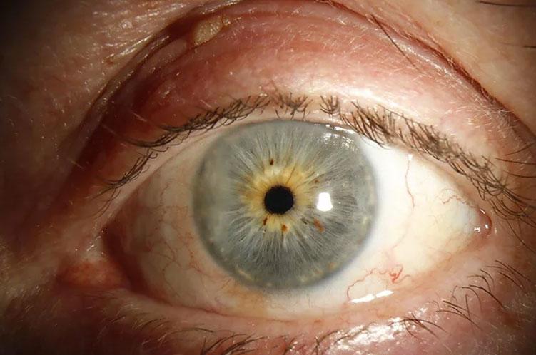 After eye surgery in Edinburgh