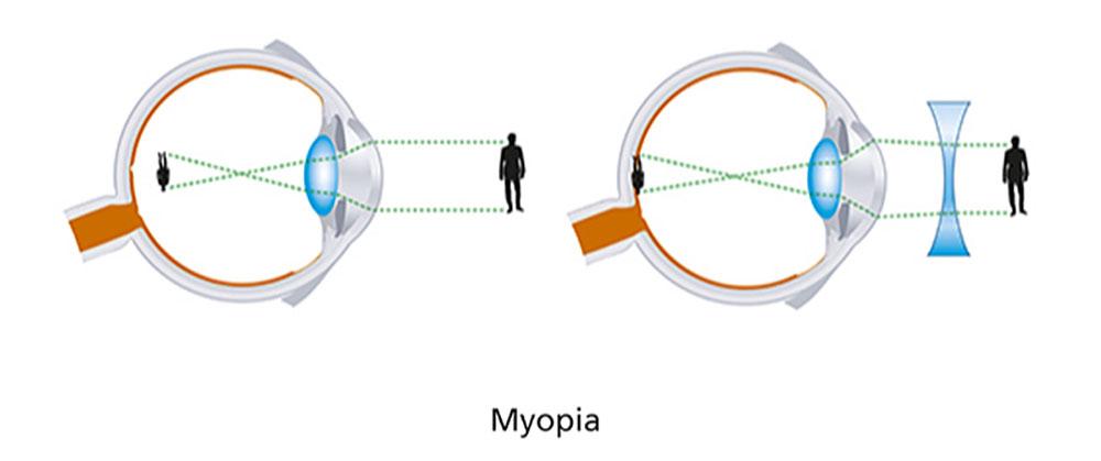 Short Sightedness (Myopia) diagram