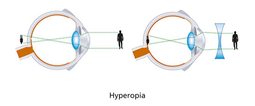 Long Sightedness (Hypermetropia) diagram
