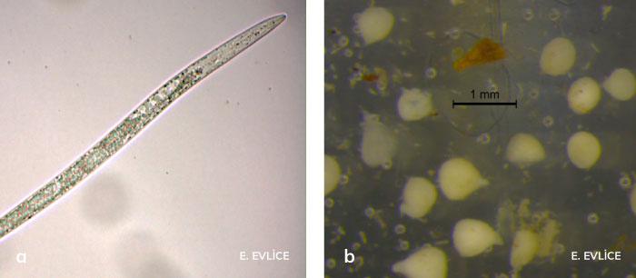 Kök-ur nematodu larvası ve dişileri