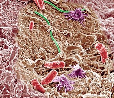 Elektron mikroskobu altında çeşitli toprak mikroorganizmaların 10.000 kat büyütülmüş görüntüleri