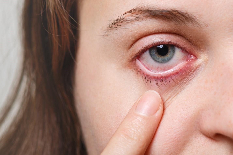 Что делать, если после ковида ухудшилось зрение