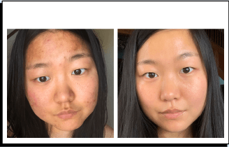 Jinne before and after acne treatment