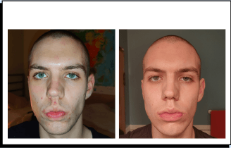 Magnus before and after prescription acne treatment