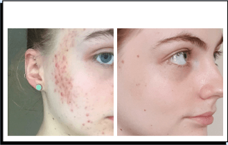 Siona before and after acne treatment