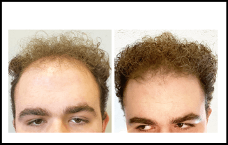 Hair Loss Before and After Treatment 11 Months
