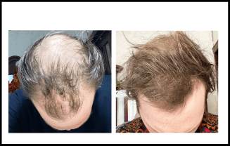 Hair Loss Before and After Treatment 3 Months