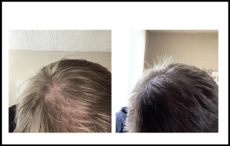 Hair Loss Before and After Treatment 5 Months