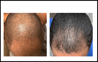 Hair Loss Before and After Treatment 3 Months Finasteride and Minoxidil