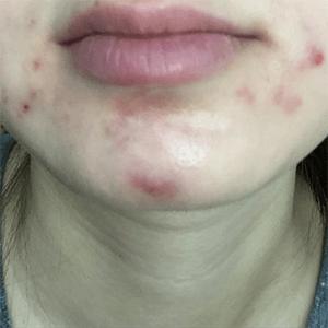 Svenja before acne treatment