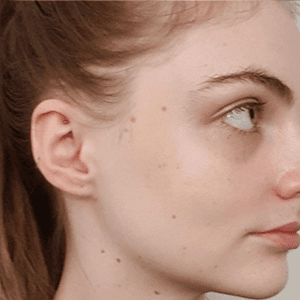 Siona after acne treatment