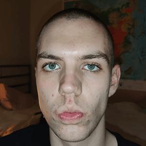 Magnus before acne treatment