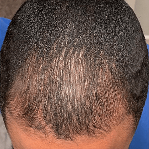 Merih after hair loss treatment