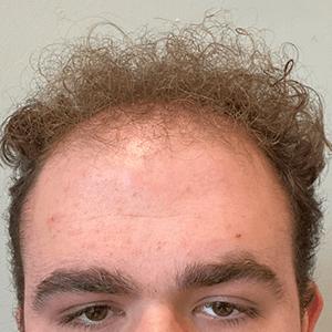 Michael before hair loss treatment