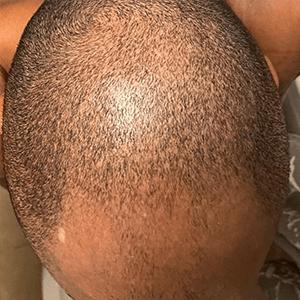 Merih before hair loss treatment