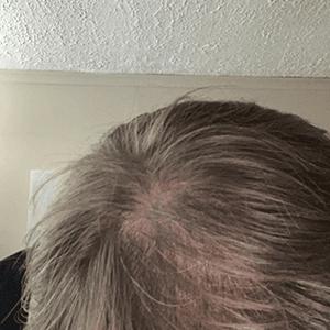 Brady before hair loss treatment