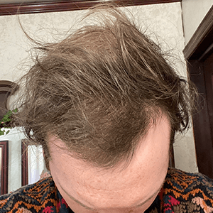 Zac after hair loss treatment