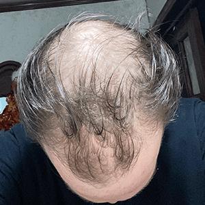 Zac before hair loss treatment