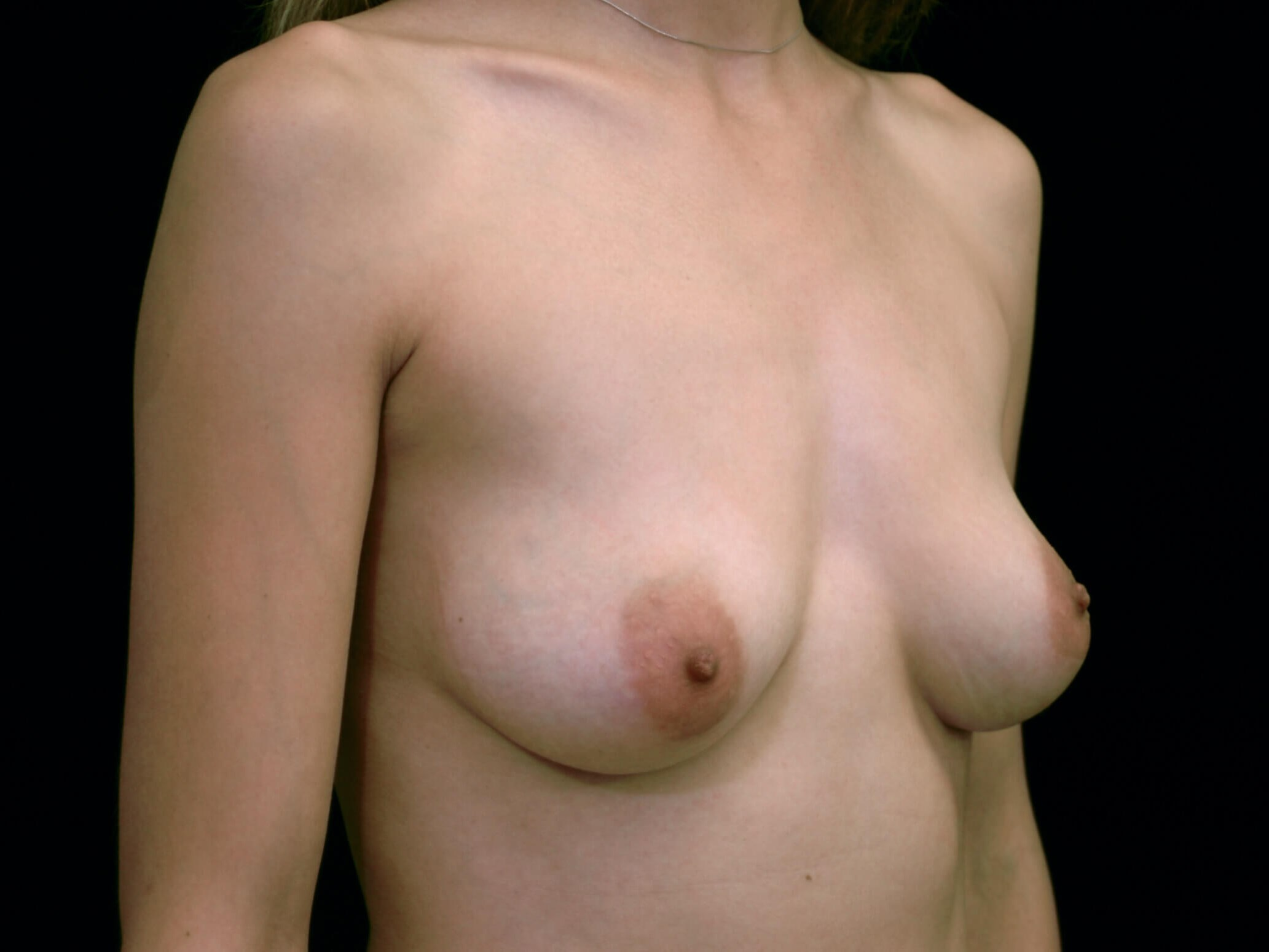 DALLAS, TEXAS WOMAN HAS BREAST AUGMENTATION SURGERY WITH SILICONE GEL IMPLANTS