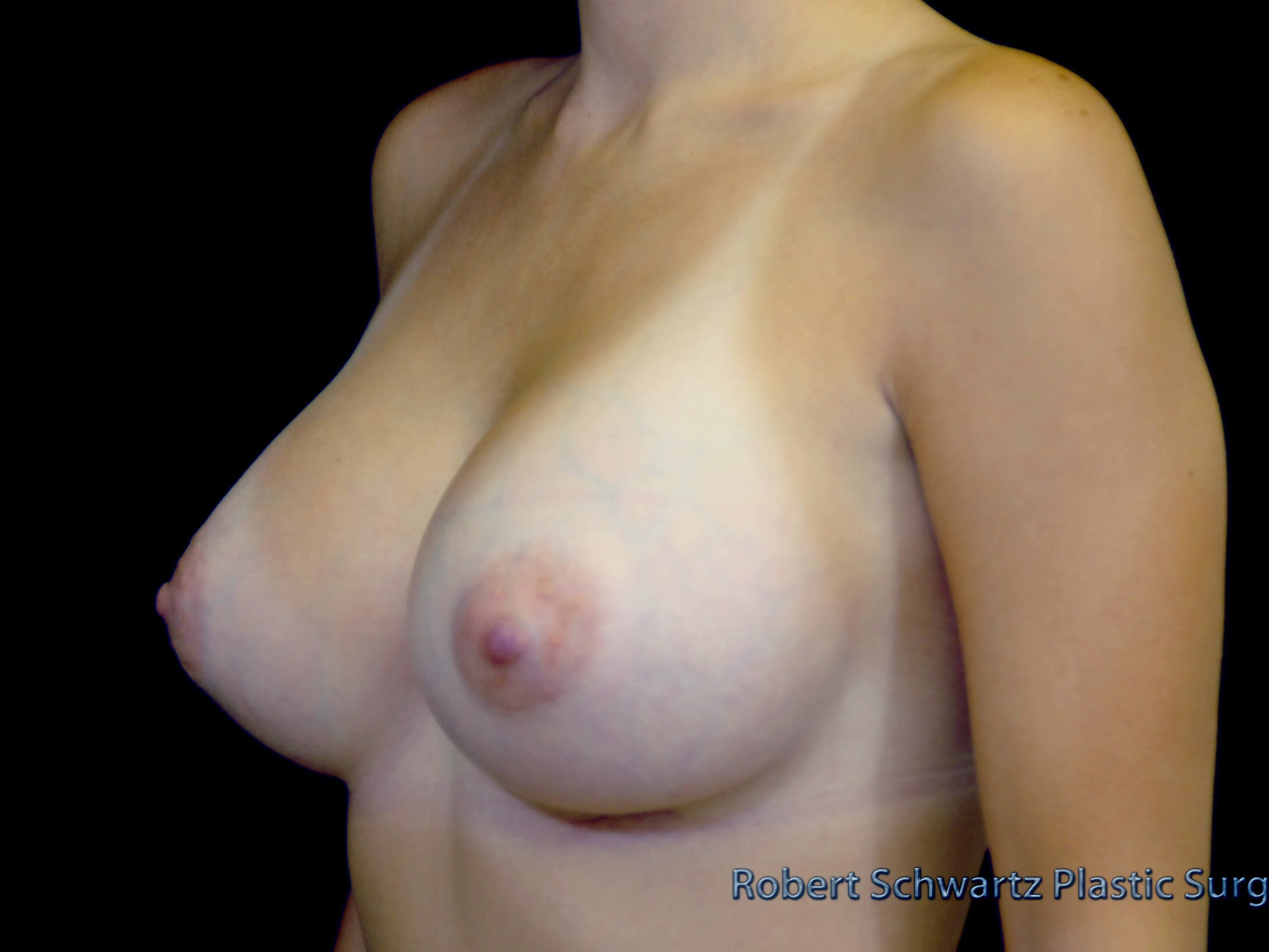 FRISCO, TEXAS WOMAN HAS BREAST AUGMENTATION WITH SILICONE GEL IMPLANTS