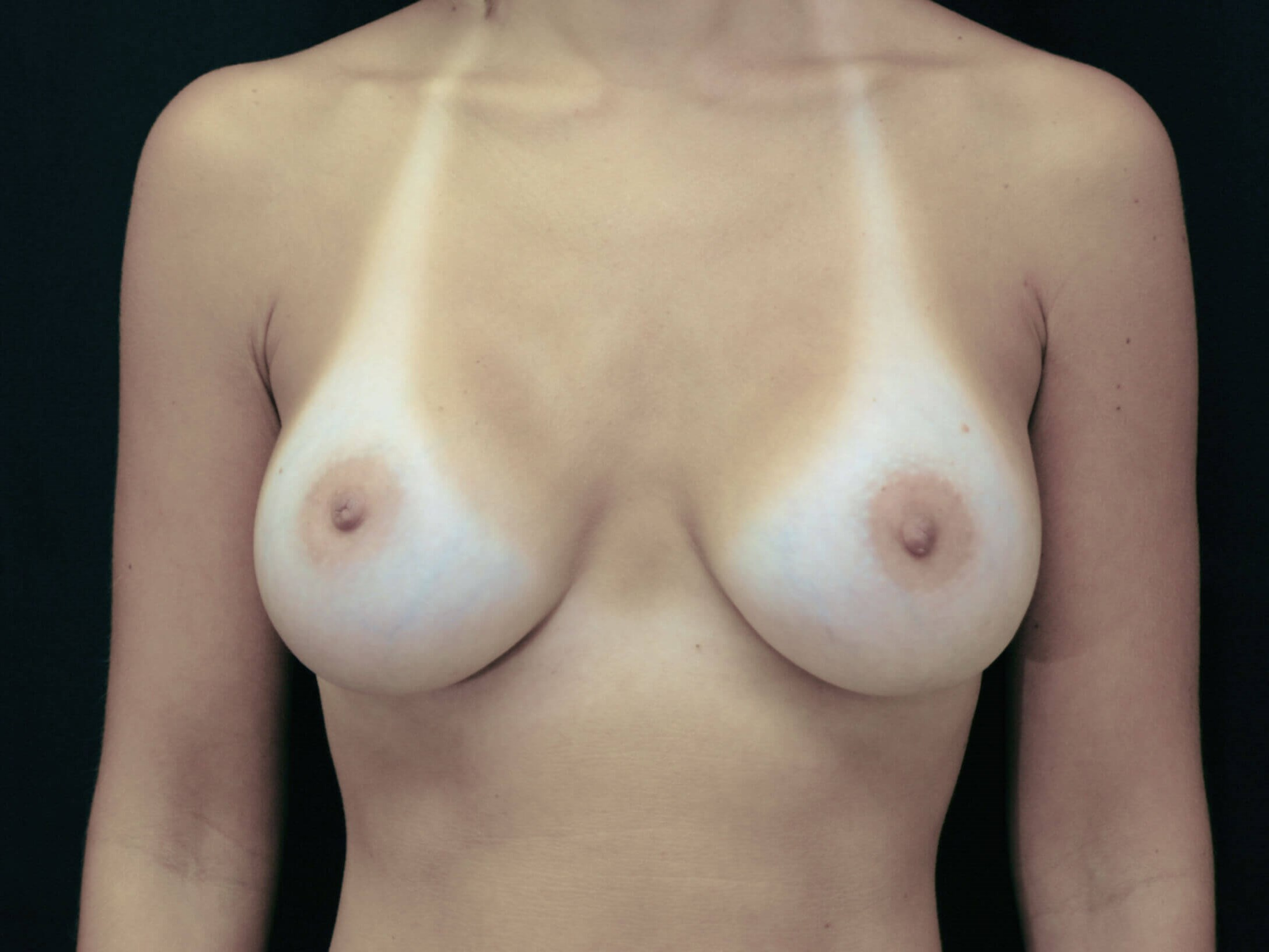 DALLAS, TEXAS WOMAN HAS BREAST AUGMENTATION WITH SALINE IMPLANTS