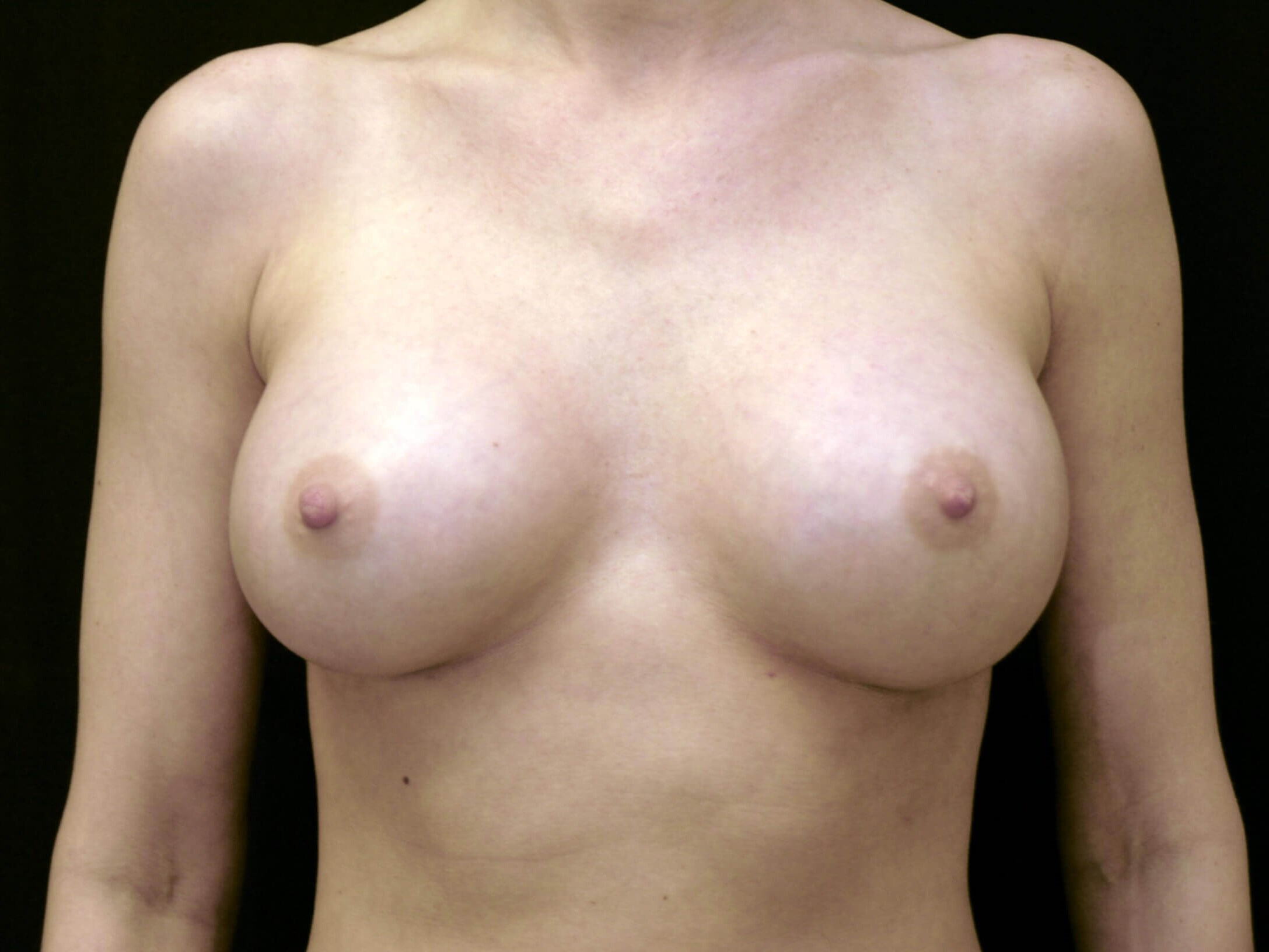 DALLAS, TEXAS WOMAN HAS BREAST AUGMENTATION WITH SILICONE GEL IMPLANTS