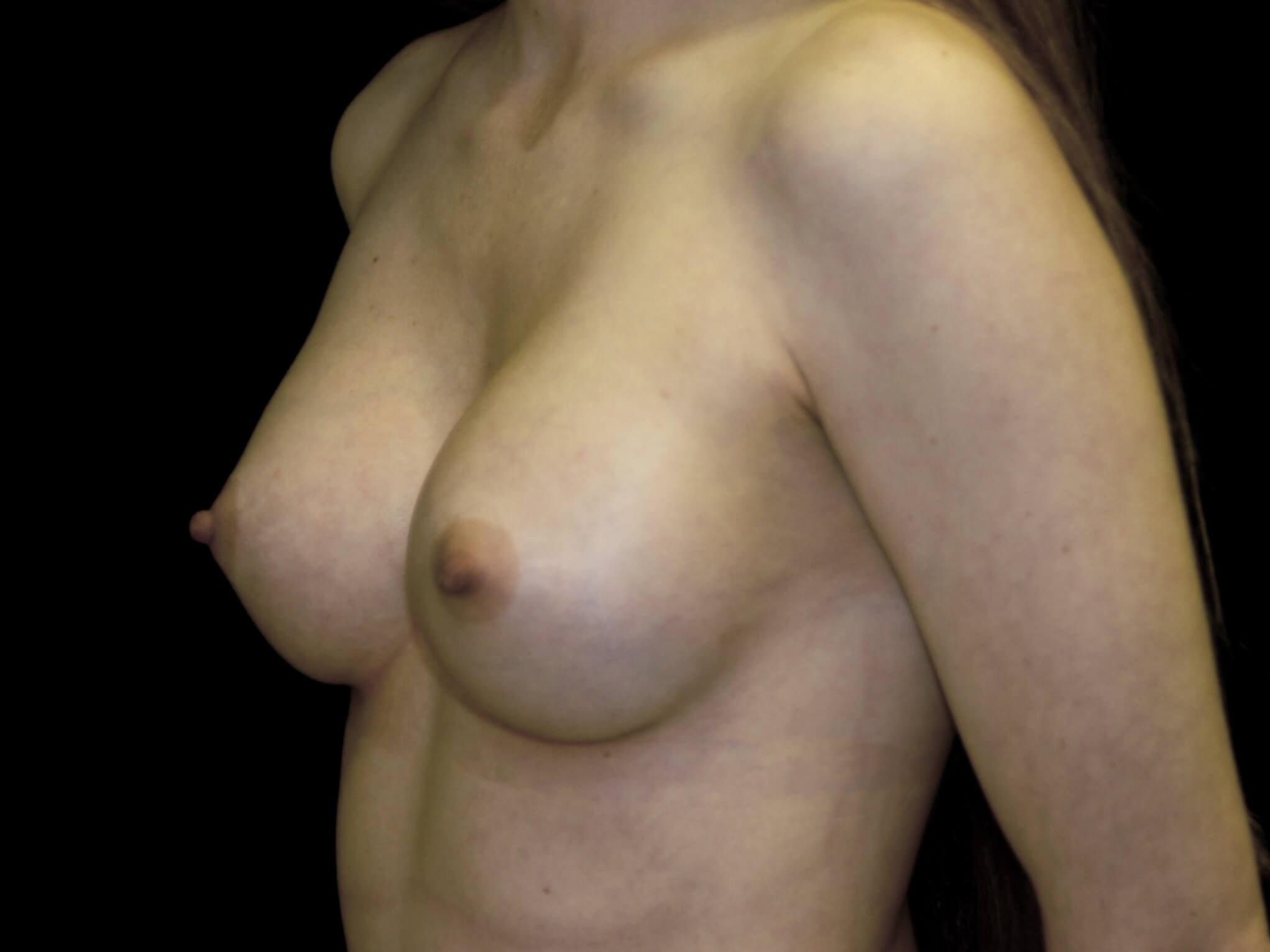 DALLAS, TEXAS WOMAN HAS BREAST AUGMENTATION WITH SILICONE GEL BREAST IMPLANTS