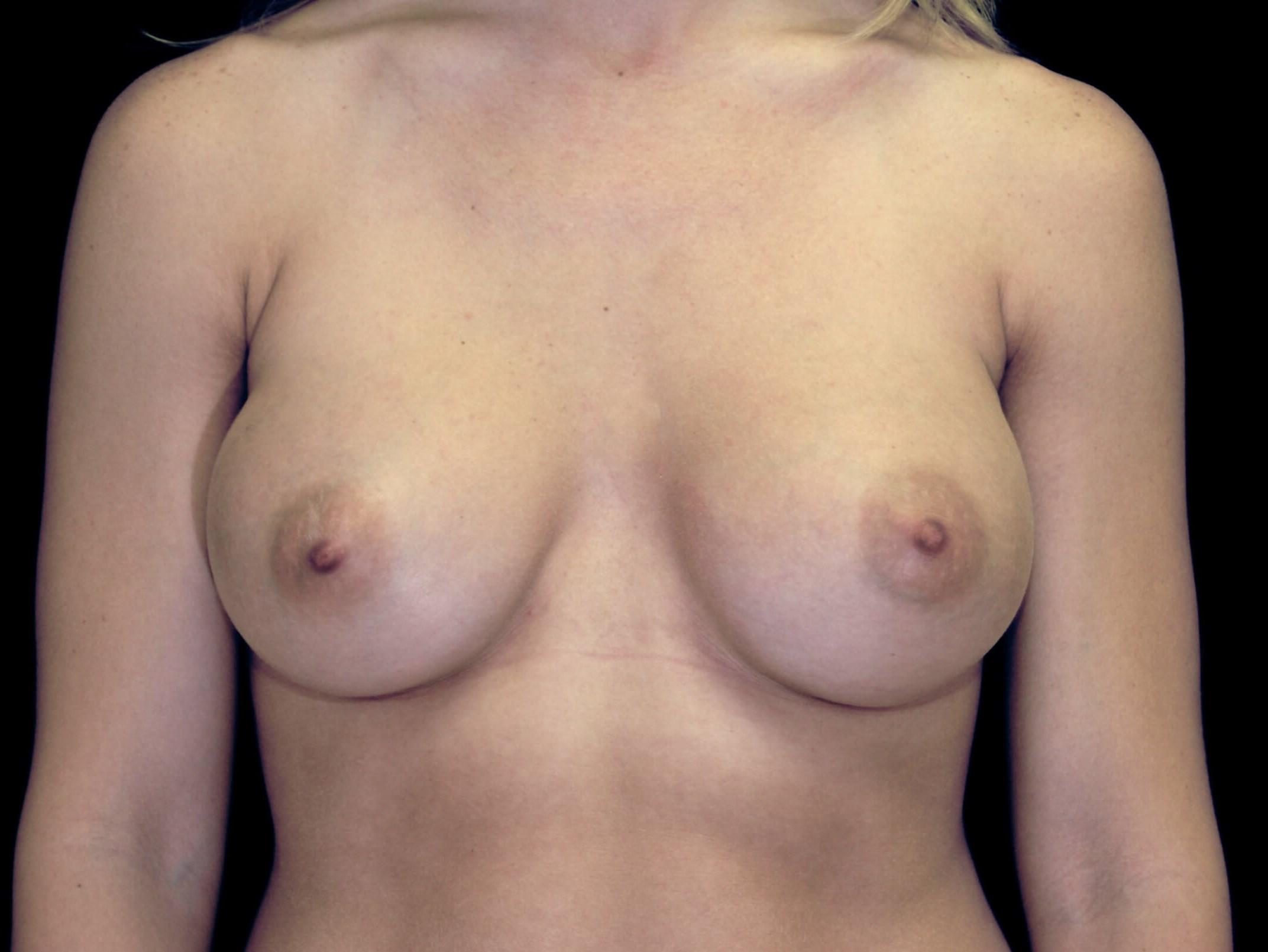 DALLAS, TEXAS WOMAN HAS SILICONE GEL BREAST AUGMENTATION