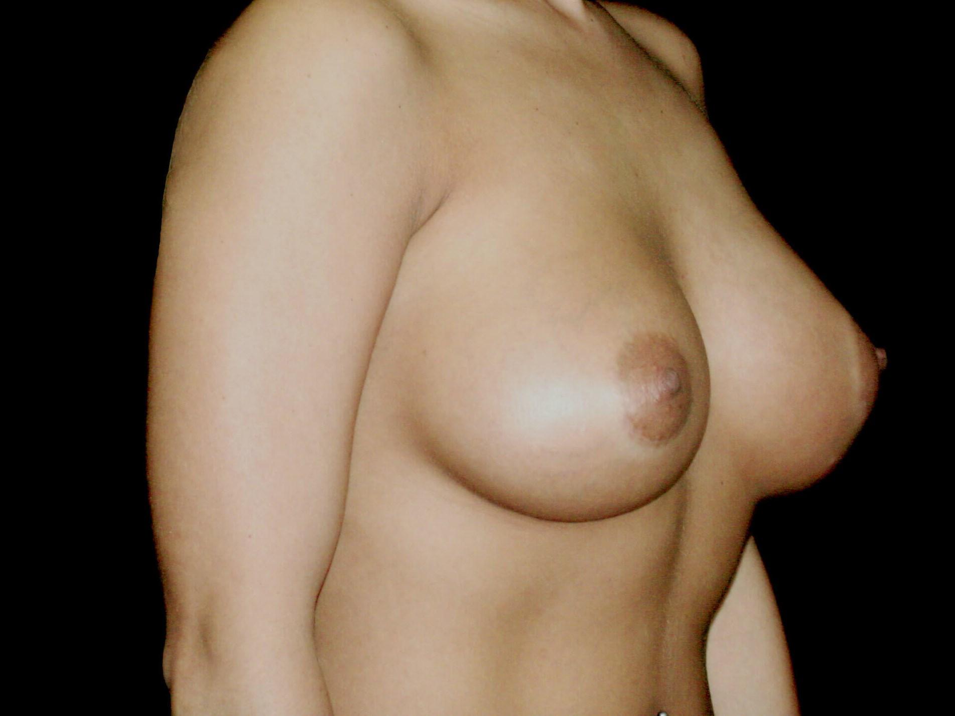 DALLAS, TEXAS WOMAN HAS BREAST AUGMENTATION PROCEDURE WITH GUMMY BEAR IMPLANTS