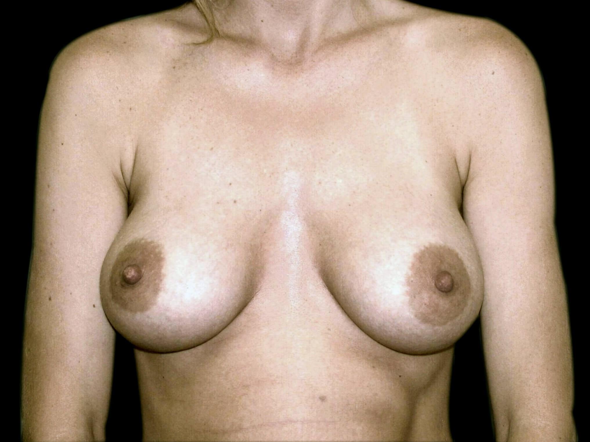 DALLAS, TEXAS WOMAN HAS BREAST AUGMENTATION WITH SALINE BREAST IMPLANTS