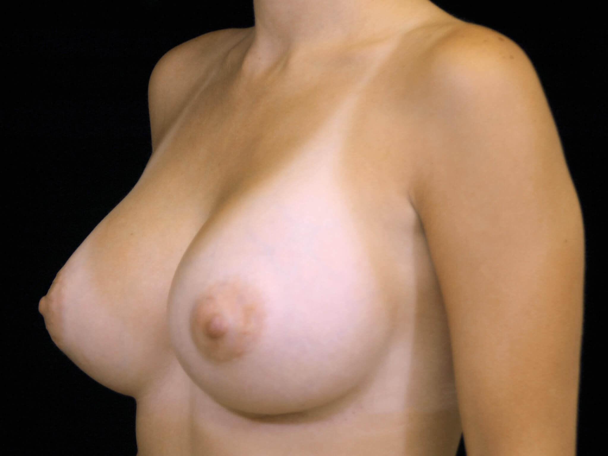 DALLAS, TEXAS MOM HAS BREAST AUGMENTATION WITH SILICONE GEL BREAST IMPLANTS