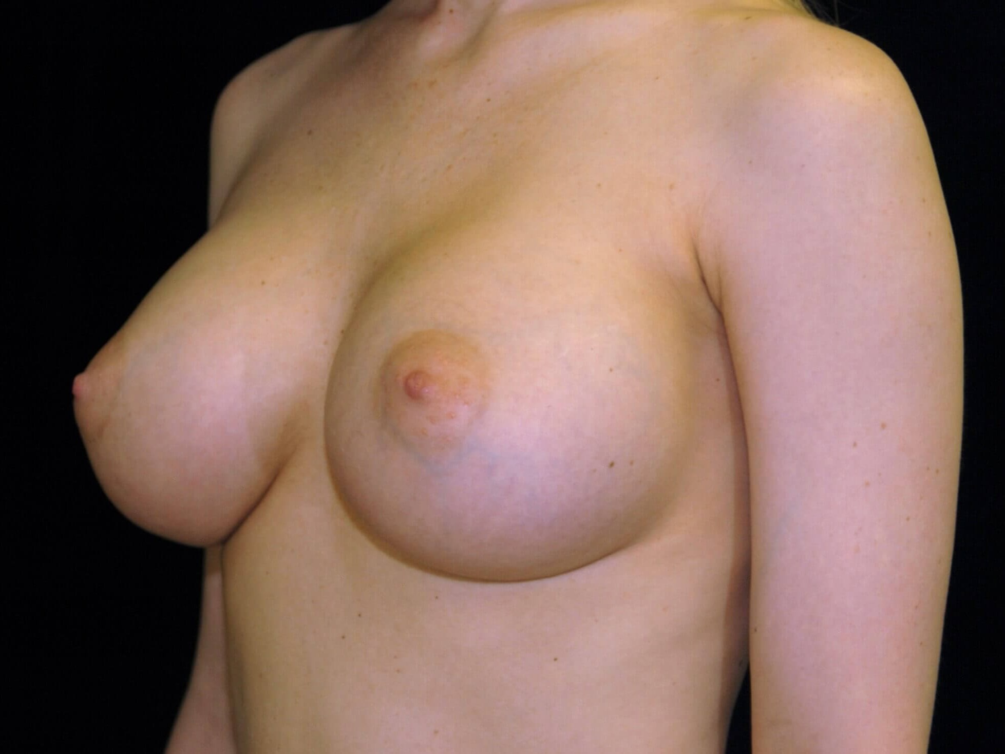 DALLAS, TEXAS WOMAN HAS BREAST AUGMENTATION WITH SILICONE GEL BREAST IMPLANTS.