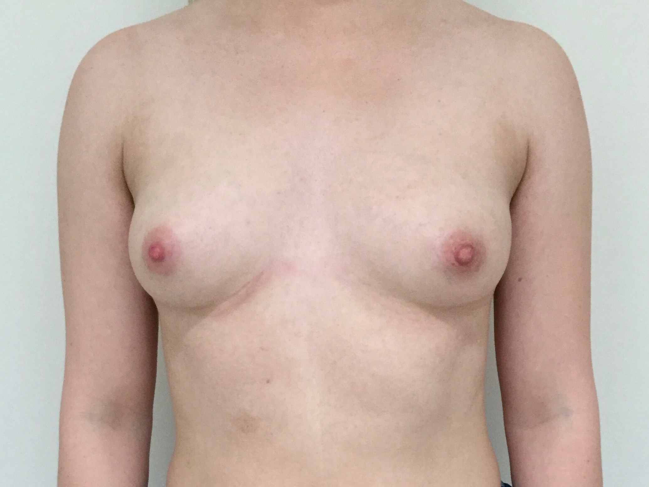 DALLAS, TEXAS WOMAN HAS BREAST AUGMENTATION WITH SILICONE GEL IMPLANTS