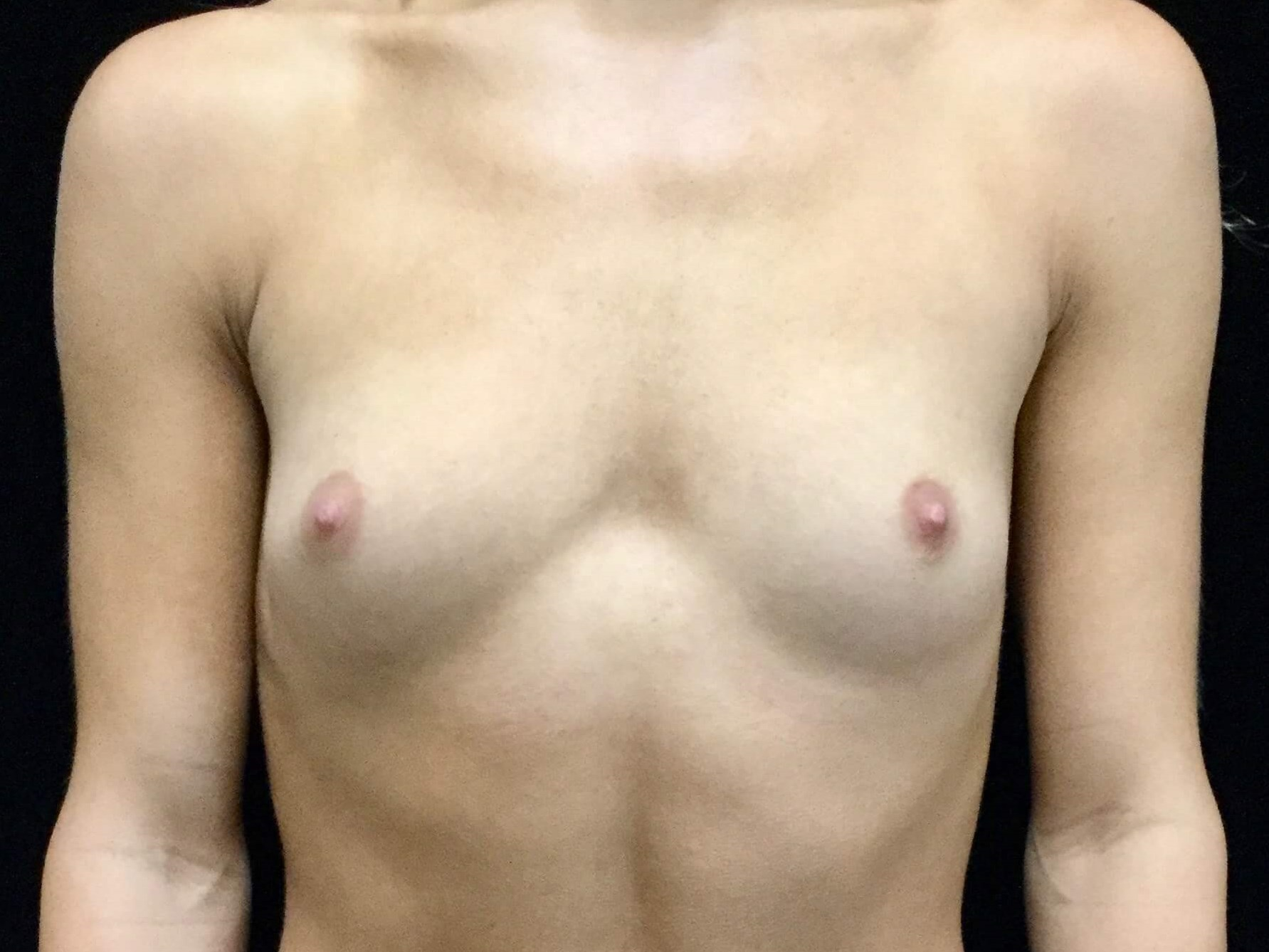 DALLAS, TEXAS WOMAN HAS BREAST AUGMENTATION WITH TEXTURED SILICONE GEL IMPLANTS