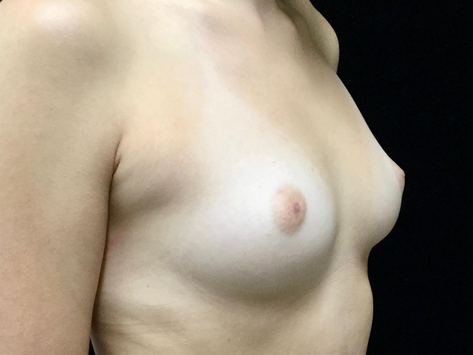DALLAS, TEXAS WOMAN HAS BREAST AUGMENTATION WITH SILICONE GEL BREAST IMPLANTS
