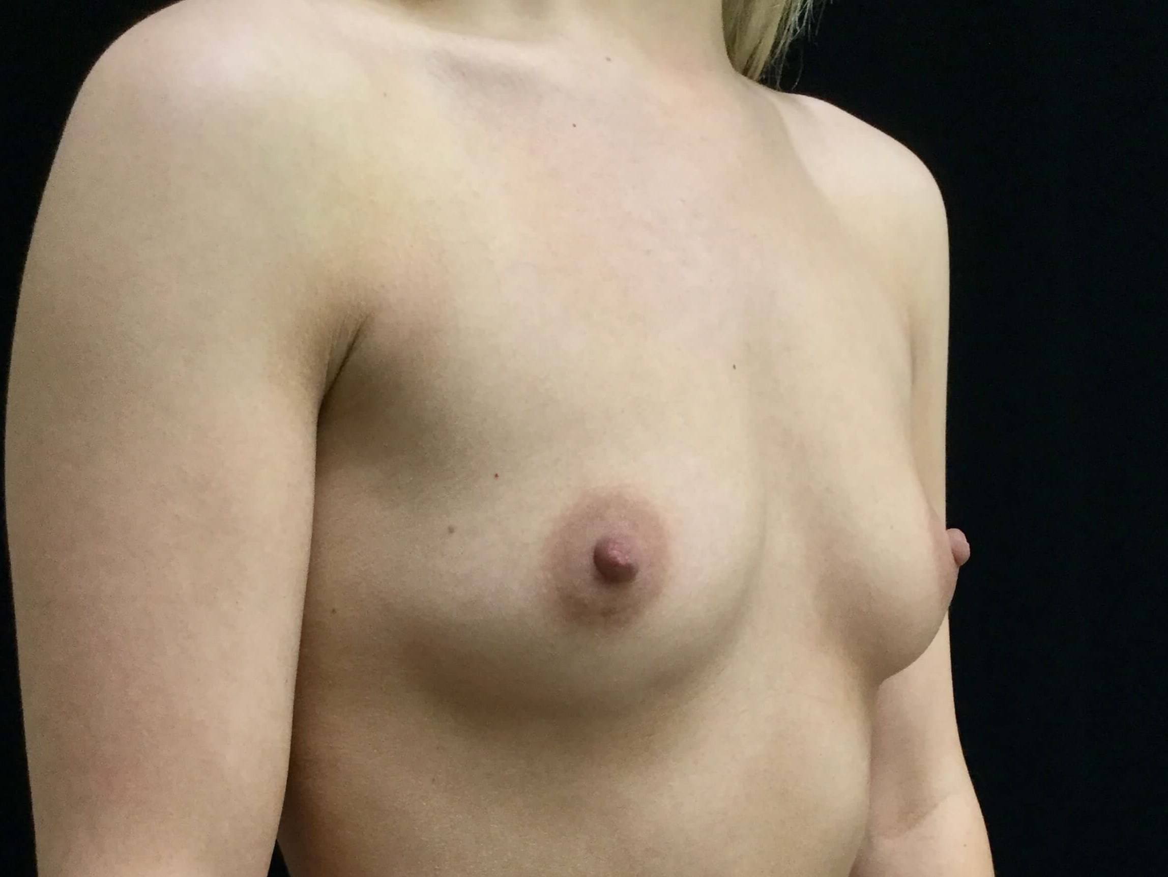 DALLAS, TEXAS WOMAN HAS GUMMY BEAR BREAST AUGMENTATION