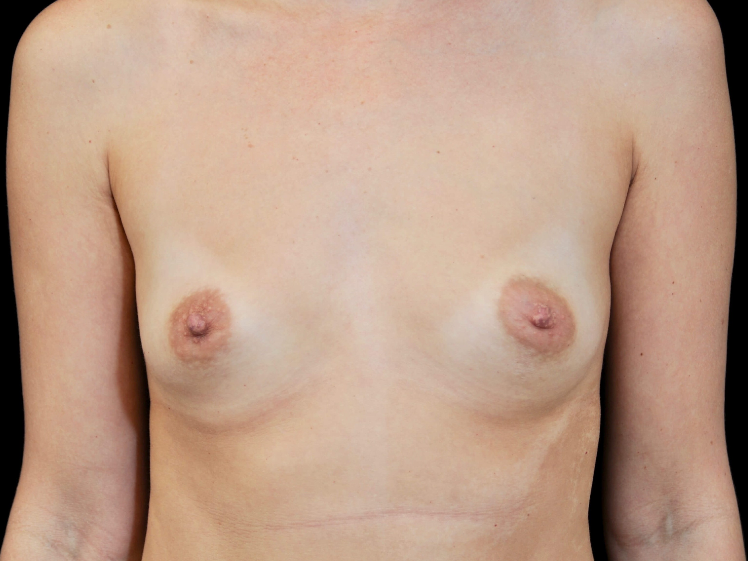 WOMAN IN DALLAS, TEXAS HAS BREAST AUGMENTATION WITH SILICONE GEL BREAST IMPLANTS
