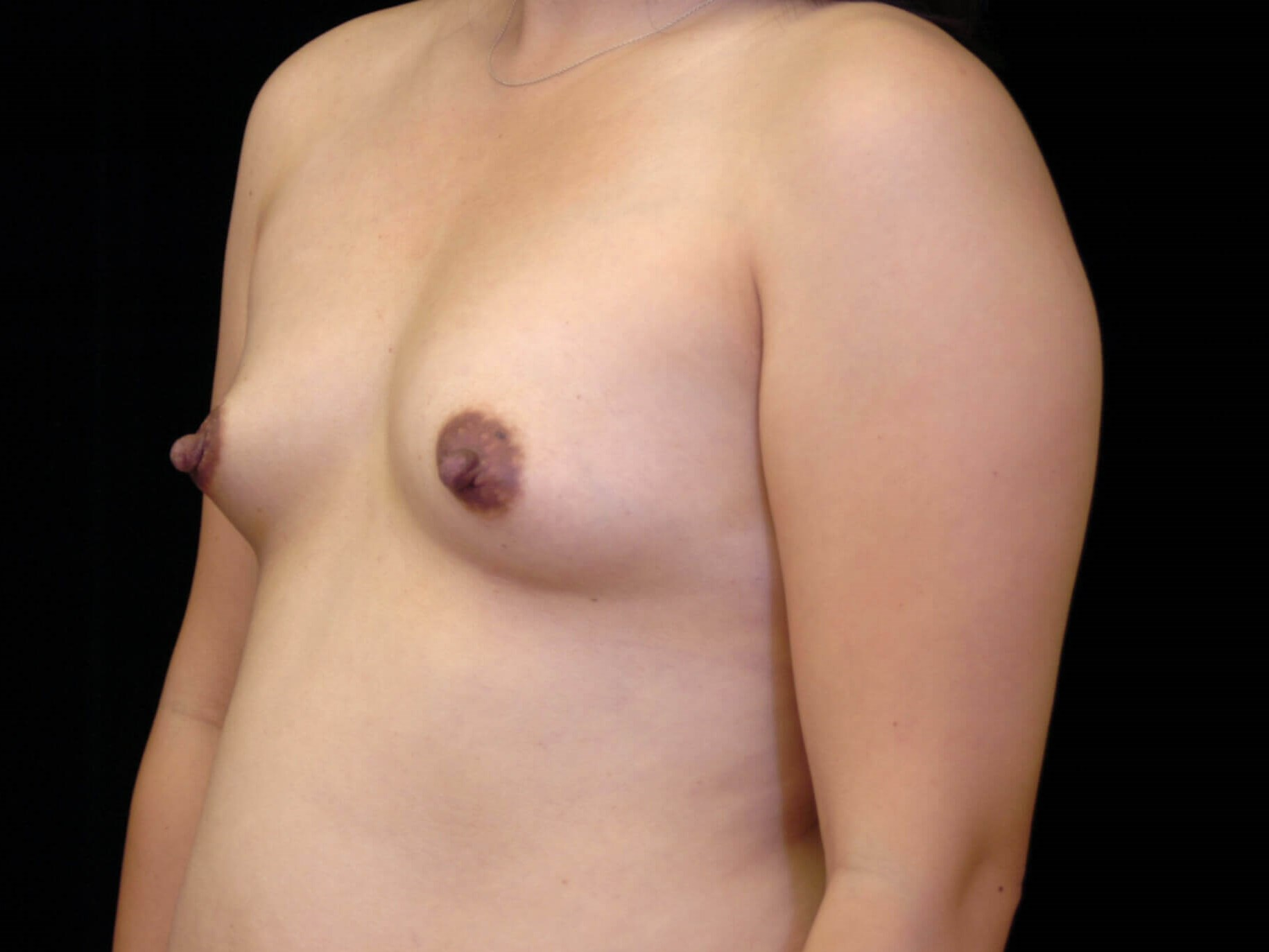 DALLAS, TEXAS WOMAN OPTS FOR SUBTLE BREAST ENHANCEMENT BY HAVING FAT TRANSFER.