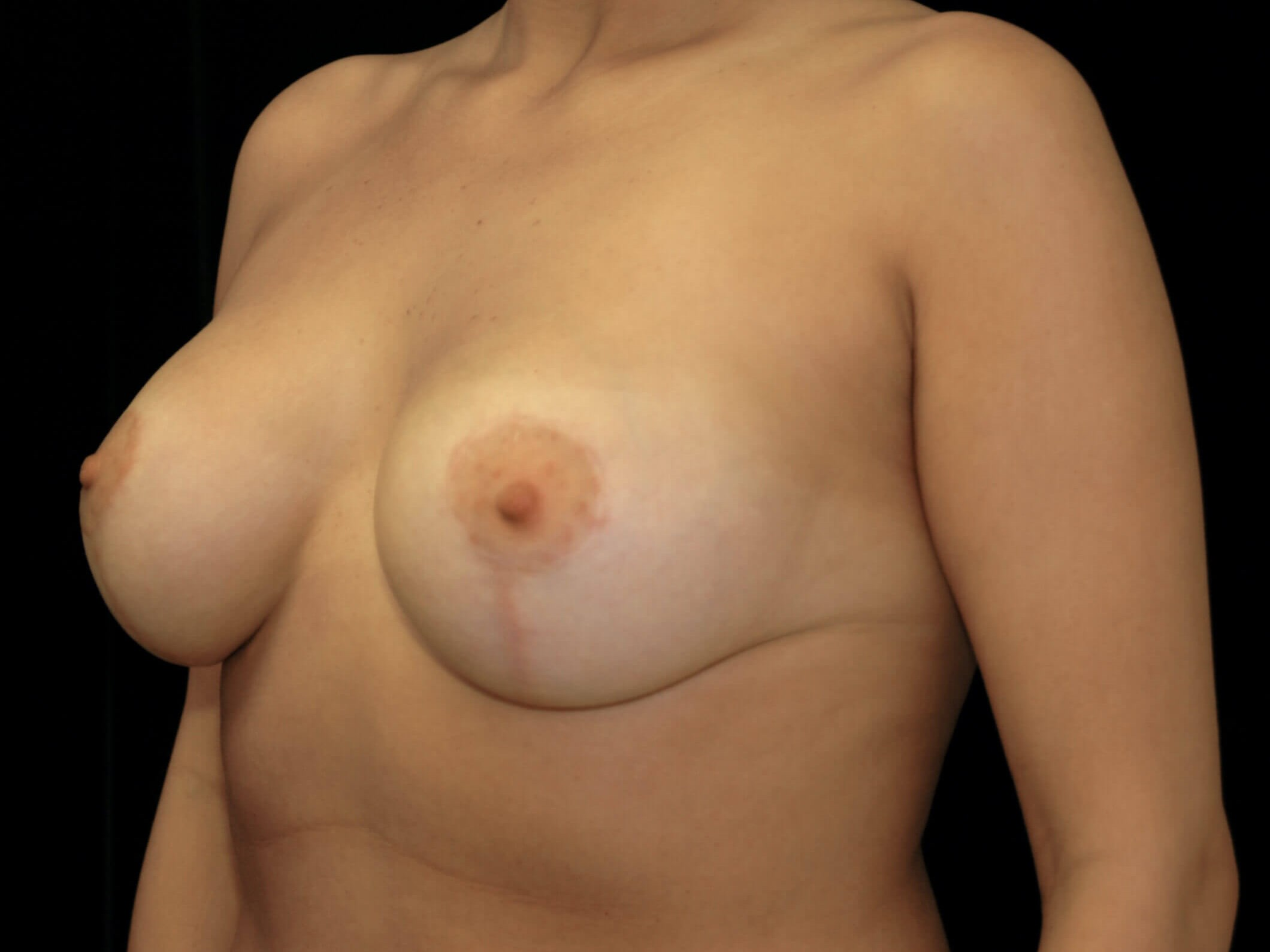 DALLAS, TEXAS WOMAN HAS BREAST AUGMENTATION AND LIFT WITH SILICONE GEL IMPLANTS