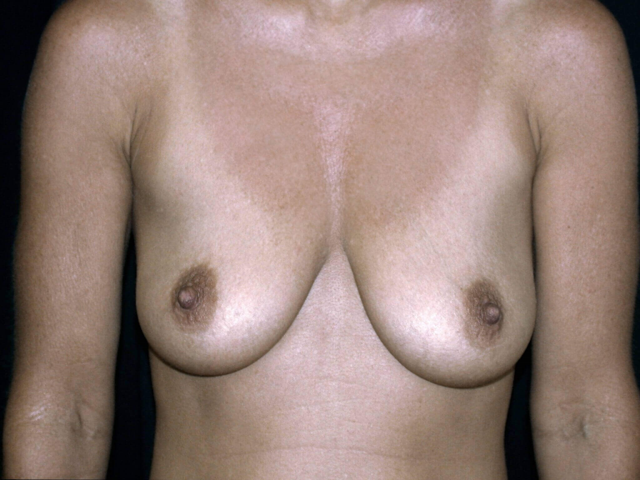 DALLAS, TEXAS WOMAN HAS BREAST LIFT AND AUGMENTATION WITH SILICONE GEL IMPLANTS