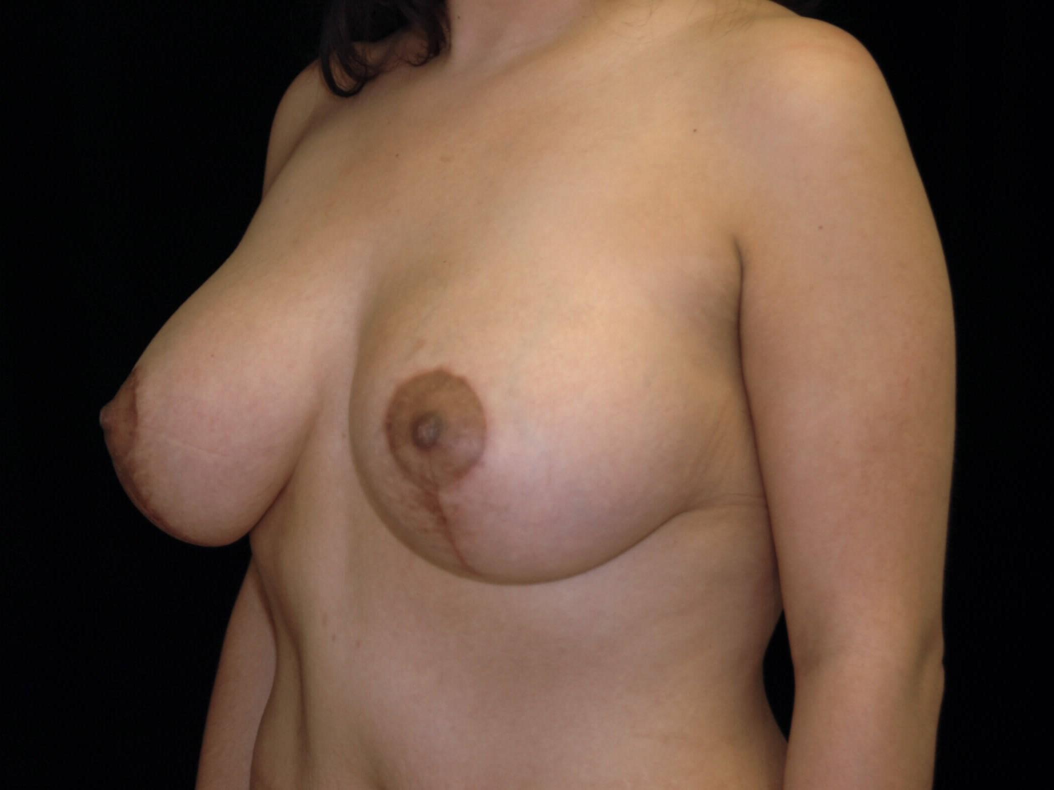 DALLAS, TEXAS WOMAN HAS BREAST LIFT AND BREAST AUGMENTATION
