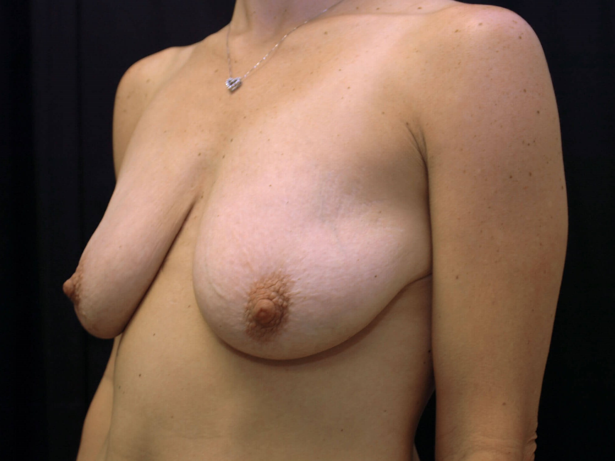 DALLAS, TEXAS WOMAN HAS BREAST AUGMENTATION AND VERTICAL BREAST LIFT SURGERY