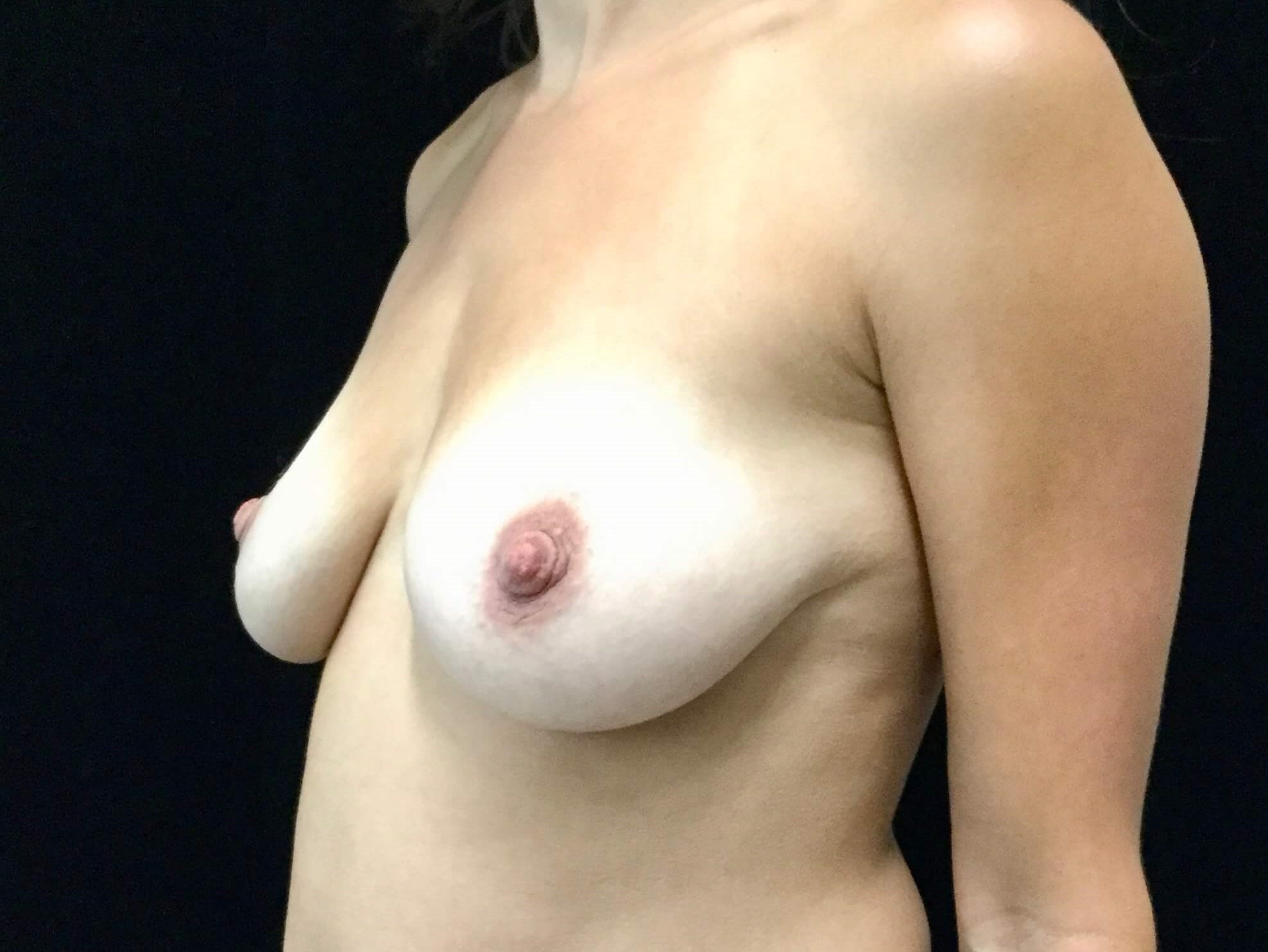 DALLAS, TEXAS WOMAN HAS BREAST AUGMENTATION WITH BREAST LIFT