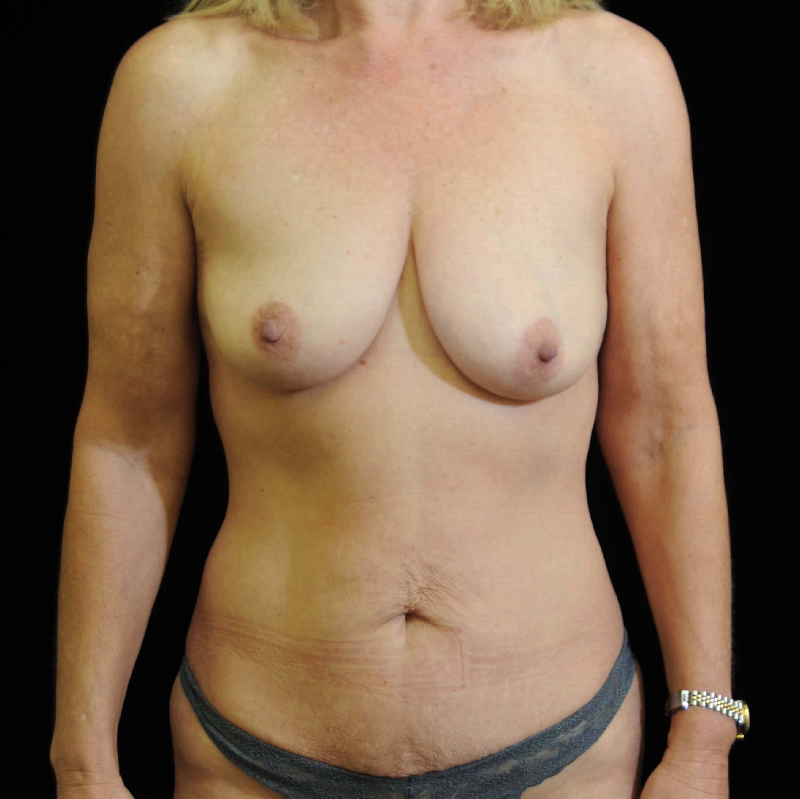 DALLAS WOMAN HAS MOMMY MAKEOVER- BREAST AUGMENTATION, FULL TUMMY TUCK, AND LIPO