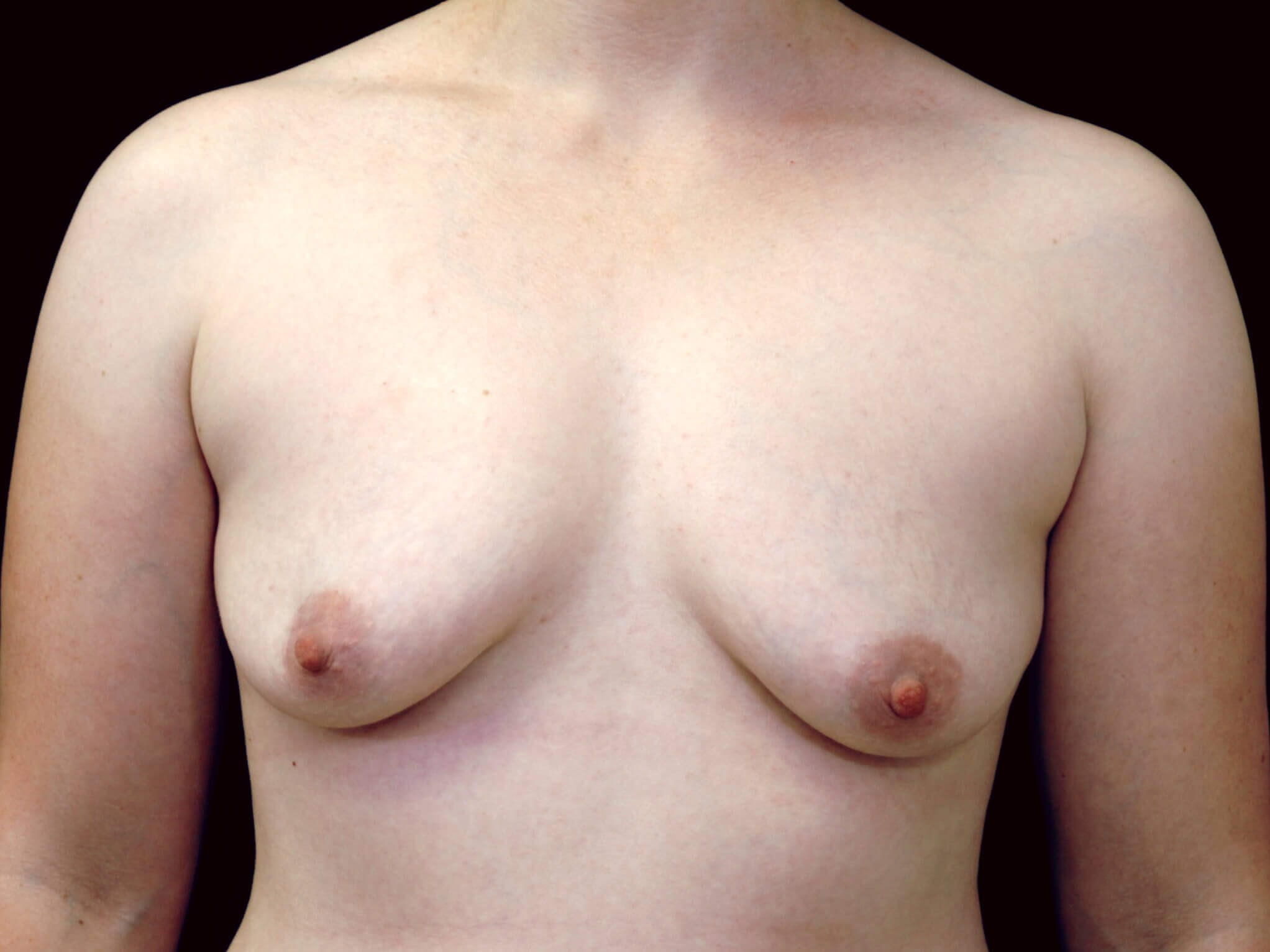 DALLAS, TEXAS WOMAN HAS BREAST AUGMENTATION WITH SALINE BREAST IMPLANTS